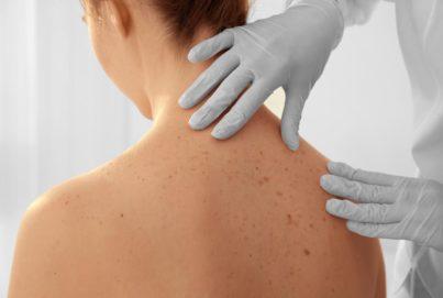medico dermatologo visita la schiena della paziente con i nei