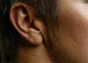 Cosa fare se ho l'orecchio tappato?